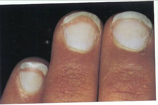 In Terry S Nails Most Of The Nail Plate 75 Turns White With Earance Ground Gl And Lunula Is Obliterated It May Occur One Finger