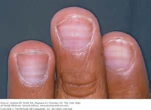 muehrcke nail